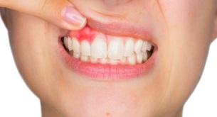 Zähne zusammenbeißen - oder besser nicht?